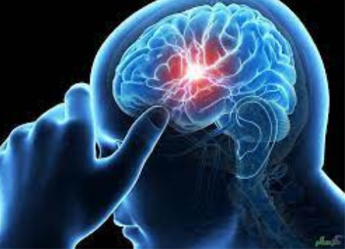 Neurological Disorders (Hardware Problems)